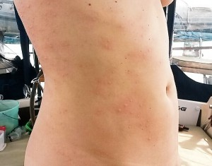 Jellyfish welts